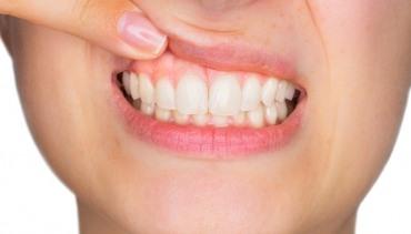 Treatment of Gum Recession